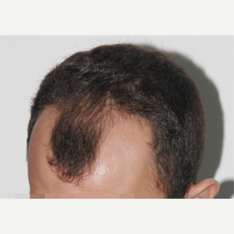 25-34 year old man treated with FUE Hair Transplant before 3238515