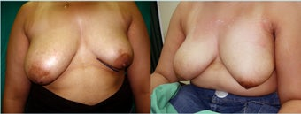 32 years female had unilateral hypoplasia of left breast reconstructed with silicone gel implant 350 ccc before 932201