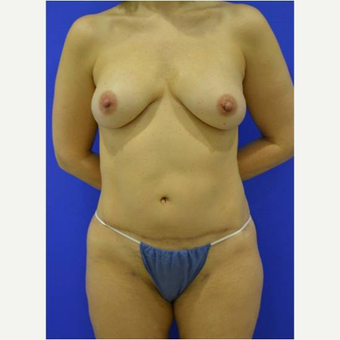 48 year old woman treated with Breast Reconstruction Revision after 3725269
