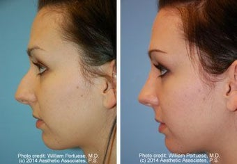 Rhinoplasty before 212357