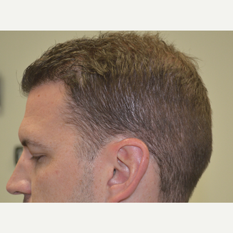 35-44 year old man treated with FUE Hair Transplant after 3080149