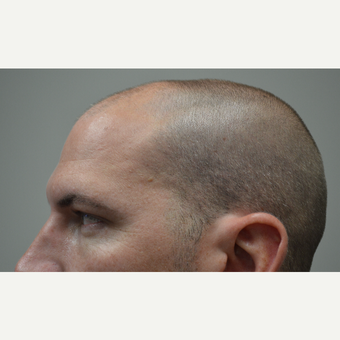 35-44 year old man treated with FUE Hair Transplant before 3080149