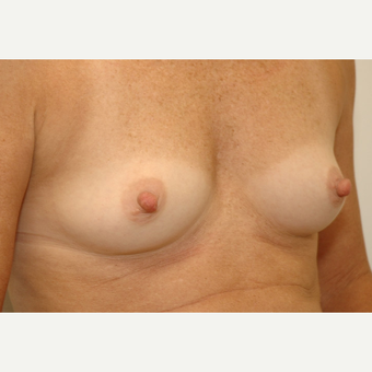 Breast Augmentation before 3108871