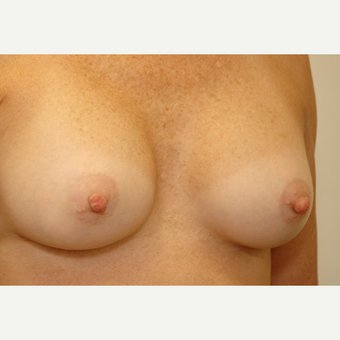 Breast Augmentation after 3108871