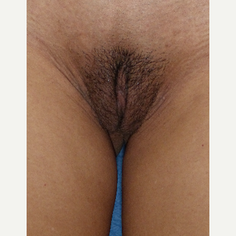 35-44 year old woman treated with Labiaplasty and clitoral hood reduction after 3079798
