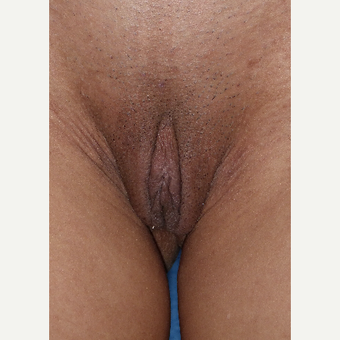 35-44 year old woman treated with Labiaplasty and clitoral hood reduction before 3079798
