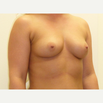 25-34 year old woman treated with Breast Implants before 3850066