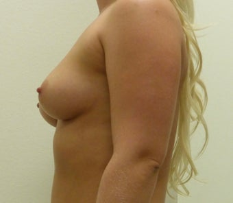 25-34 year old woman treated with Breast Implants 3850066