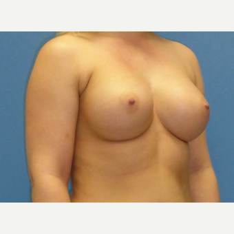 25-34 year old woman treated with Breast Implants after 3850066