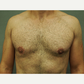 25-34 year old man treated with Male Breast Reduction after 3616902