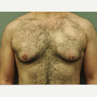 25-34 year old man treated with Male Breast Reduction before 3616902