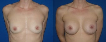 32 year old woman treated with Breast Augmentation before 2990300