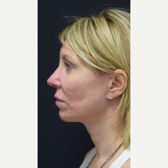 45-54 year old woman treated with Facelift after 3441783