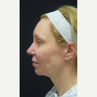 45-54 year old woman treated with Facelift before 3441783