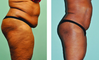 Smartlipo abdomen, hips & mons 3 mos post treatment -61 yr. old after 696012