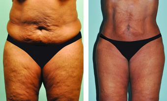 Smartlipo abdomen, hips & mons 3 mos post treatment -61 yr. old before 696012