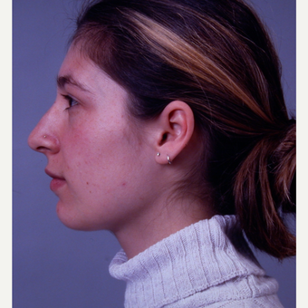18-24 year old woman treated with Rhinoplasty before 3692014