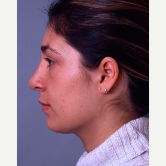 18-24 year old woman treated with Rhinoplasty after 3692014
