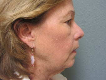 Face Lift Patient  before 1189665