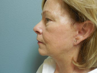 Face Lift Patient  1189665