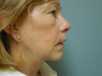 Face Lift Patient  after 1189665
