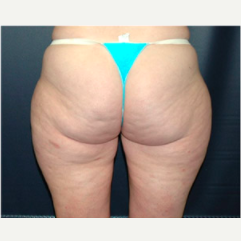 48 year old woman treated with Liposuction before 3721092