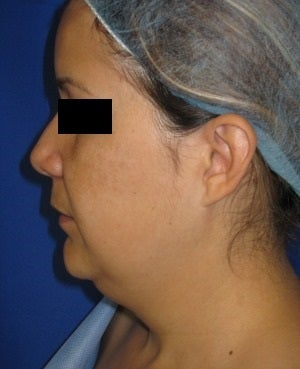 Chin Liposuction before 948746