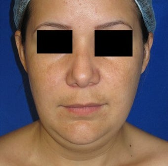 Chin Liposuction 948746