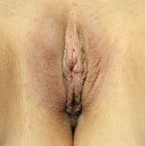 35-44 year old woman treated with Labiaplasty after 3555281