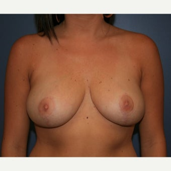 18-24 year old woman treated with Breast Reduction after 2390267