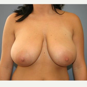 18-24 year old woman treated with Breast Reduction before 2390267