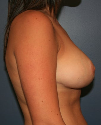 18-24 year old woman treated with Breast Reduction 2390267