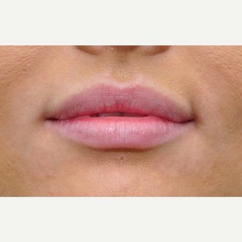 Lip augmentation for patient with fuller lips before 3135961