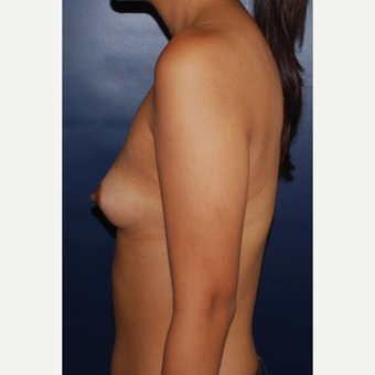 18-24 year old woman treated with Sientra Breast Implants before 3043688