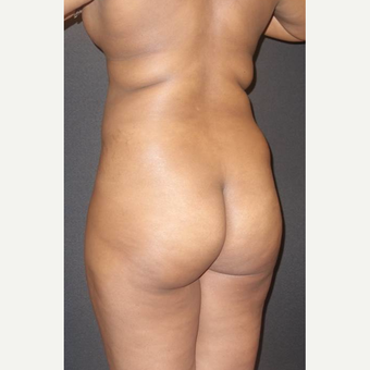 35-44 year old woman treated with Brazilian Butt Lift before 3014053