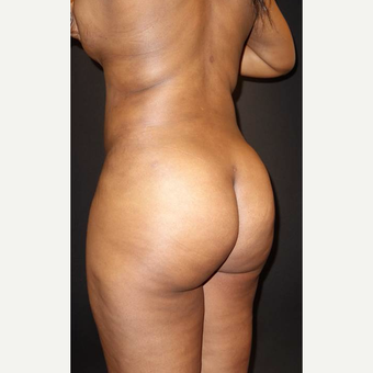 35-44 year old woman treated with Brazilian Butt Lift after 3014053