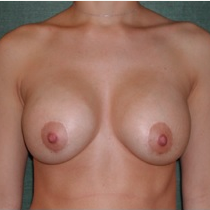 25-34 year old woman treated with Breast Implant Revision before 3376628