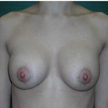 25-34 year old woman treated with Breast Implant Revision after 3376628