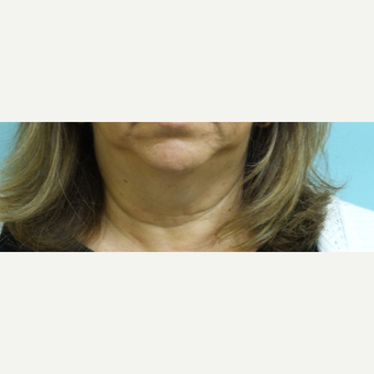 55-64 year old woman treated with Ultherapy before 3219548