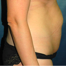 35 year old woman treated with Tummy Tuck before 3578539