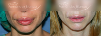 35-44 year old woman treated with Lip Reduction before 2403687