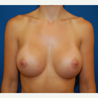 25-34 year old woman treated with Breast Implants after 3611951