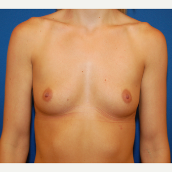 25-34 year old woman treated with Breast Implants before 3611951