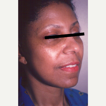 45-54 year old woman treated with Facelift after 3539127