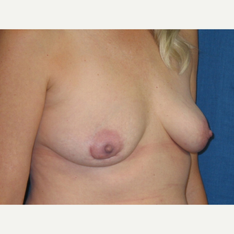 Capsuletomy and removal of implants from a breast augmentation performed 18 years prior. after 3417702
