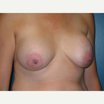 Capsuletomy and removal of implants from a breast augmentation performed 18 years prior. before 3417702