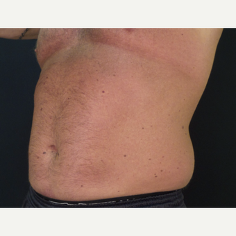 45-54 year old man treated with CoolSculpting before 3134615