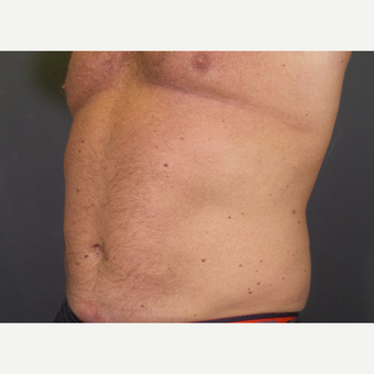 45-54 year old man treated with CoolSculpting after 3134615