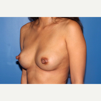 25-34 year old woman treated with Breast Implant Revision after 3366862