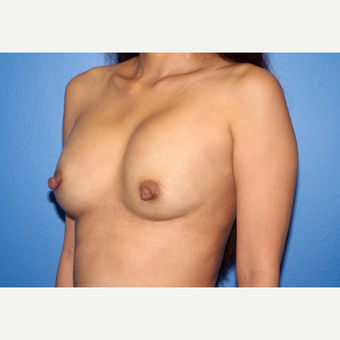 25-34 year old woman treated with Breast Implant Revision before 3366862